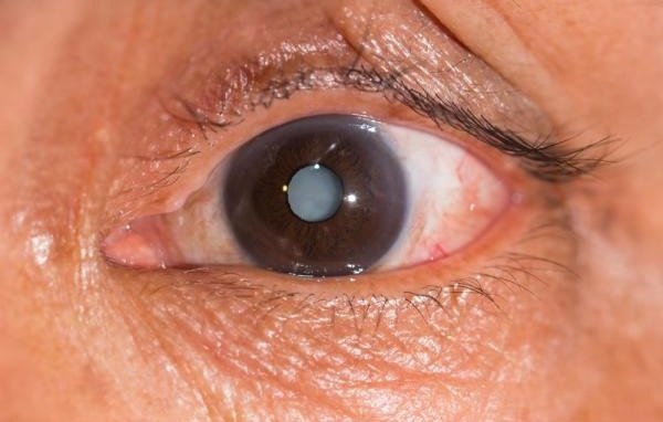 Mắt bị đục thủy tinh thể